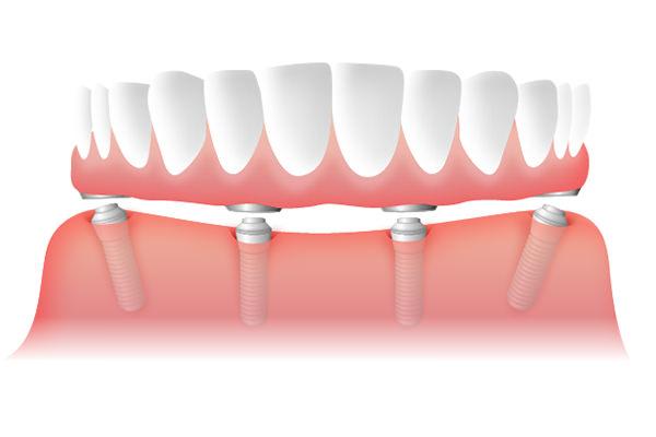 下の入れ歯の安定をさせる